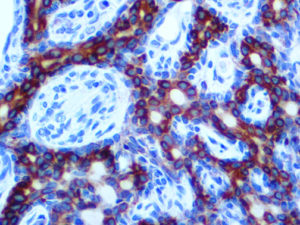 IHC of Cytokeratin LMW/AE1 on an FFPE Prostate Tissue