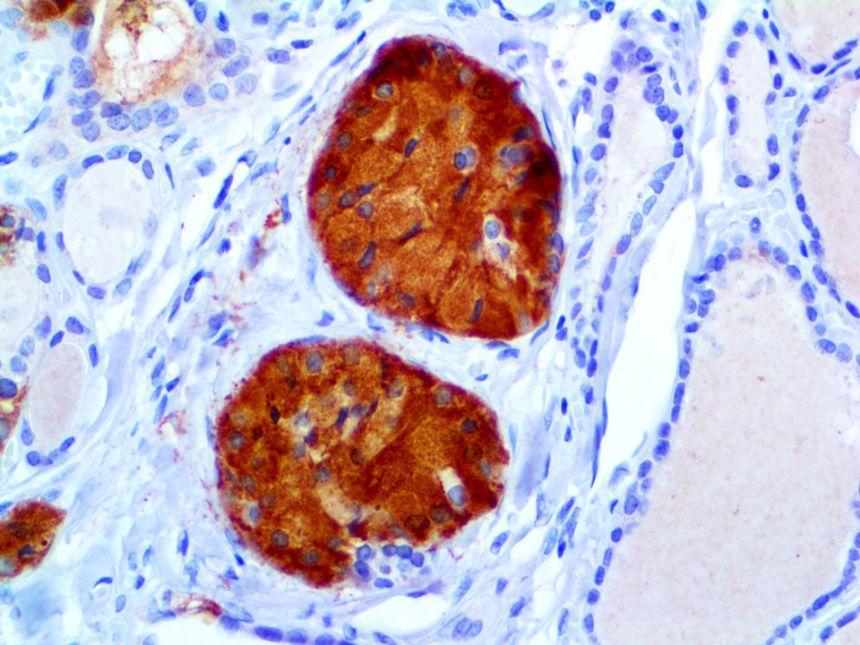 Calcitonin RMab