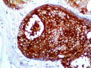 IHC of GCDFP-15 on an FFPE Breast Carcinoma Tissue