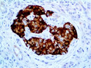 IHC of Insulin on an FFPE Pancreas Tissue