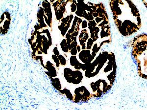 IHC of PSMA on an FFPE Prostate Adenocarcinoma Tissue