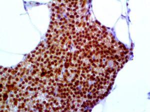 IHC of Parafibromin on an FFPE Parathyroid CarcinomaTissue