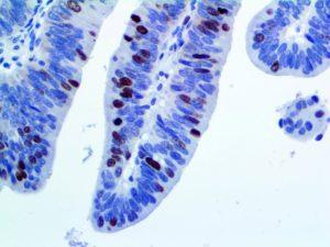 IHC of Survivin on an FFPE Colon Tissue