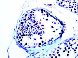 IHC of WT1 on an FFPE Testicular Cancer Tissue
